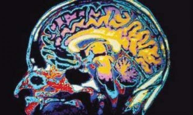 Top Causes of Brain Injuries