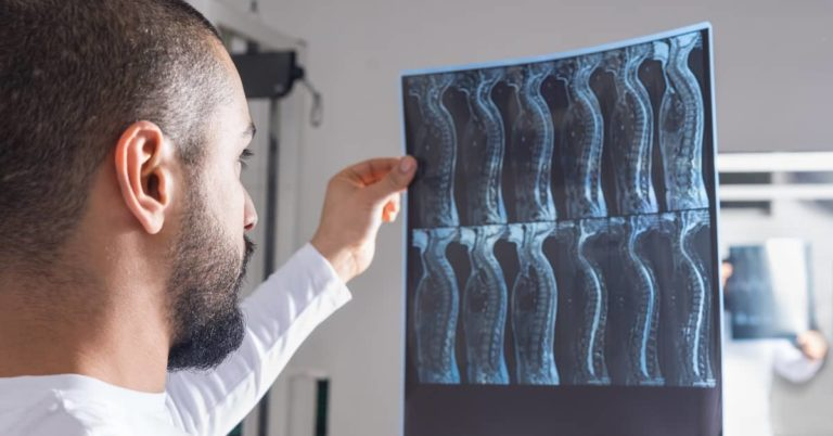 Compensation in a Spinal Cord Injury Claim