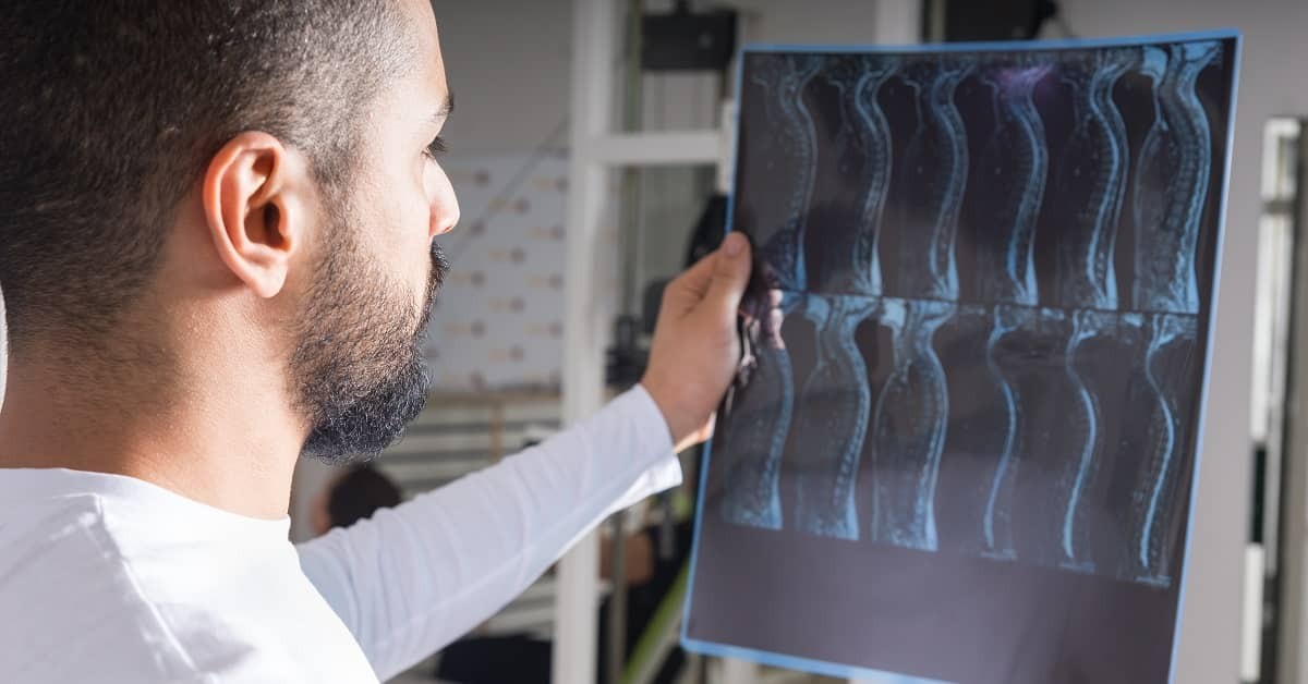 Damages in a Spinal Cord Injury Claim