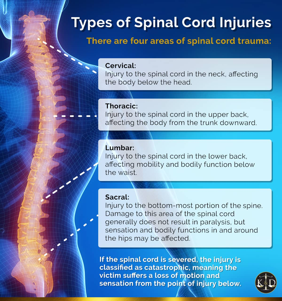 Types of Spinal Cord Injuries | Spine Injury Lawyers Florida